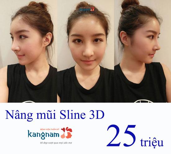 nang-mui--sline-3d