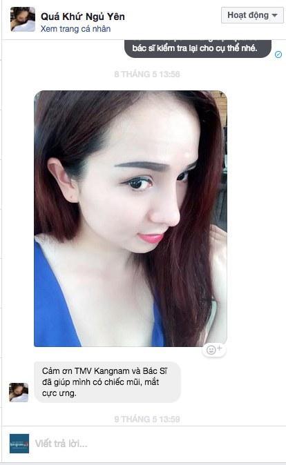 sua mui o kangnam dep khong 5