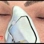 Phẫu thuật mũi to thành nhỏ chỉ trong 60 phút – Không gây biến chứng