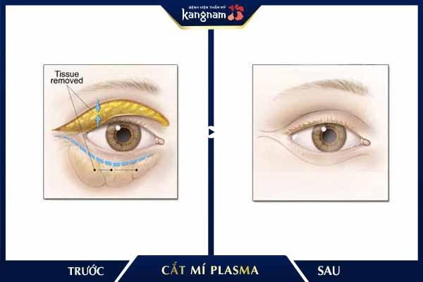 """Cắt mí Plasma giúp bạn """"hồi xuân"""" đôi mắt nhanh chóng"""