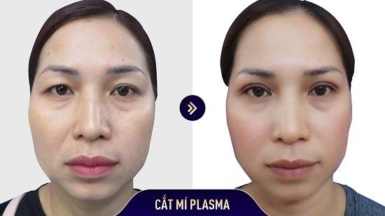 Kết quả cắt mí mắt sau 1 tháng nếp mí sắc nét, cân xứng và không hề lộ dấu hiệu thẩm mỹ