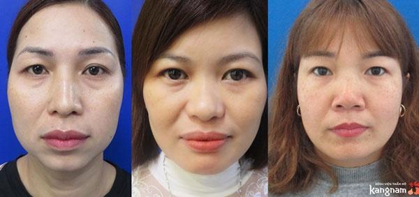 Cắt mí mắt Plasma khắc phục tối đa các vấn đề mắt sụp mí, mắt bọng mỡ, mí lệch