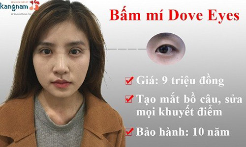 Bấm mí dove eyes kangnam