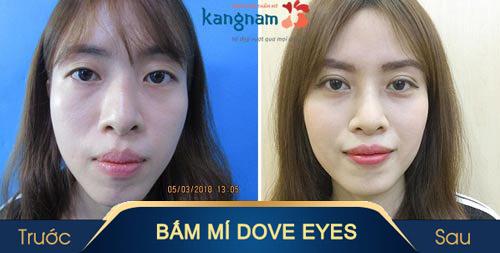 nhấn mí dove eyes kangnam