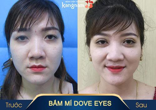 bấm mí mắt dove eyes là gì3