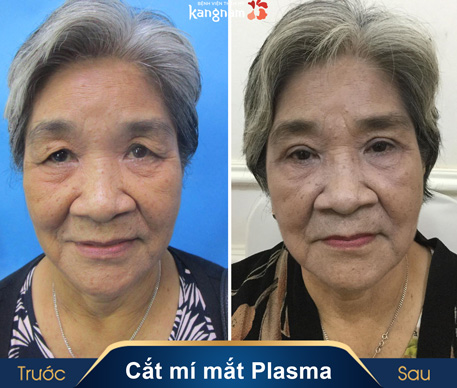 cắt mí mắt plasma