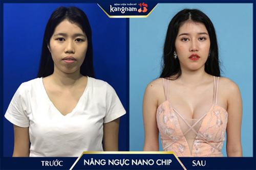 ngô quế an Nâng ngực Nano Chip