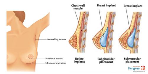 có nên nâng ngực bằng túi nano chip không