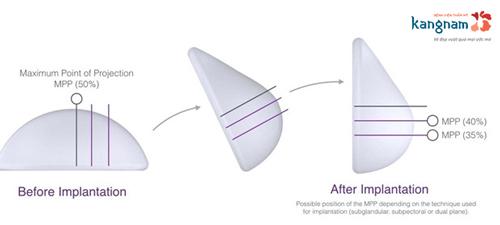 nâng ngực Nano Chip linh hoạt