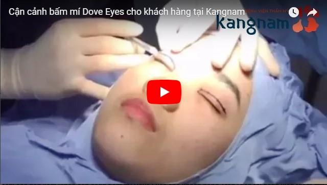 Video quy trình bấm mí mắt Dove Eyes tại Kangnam