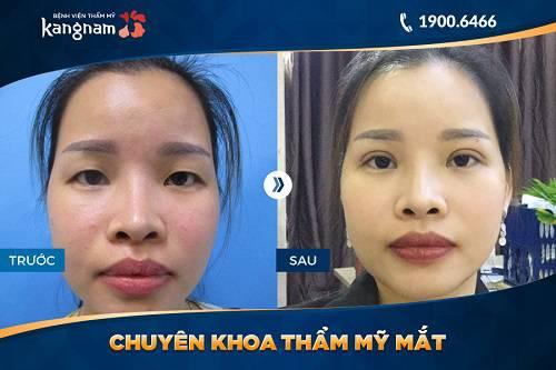 cắt mí mắt mini kết quả