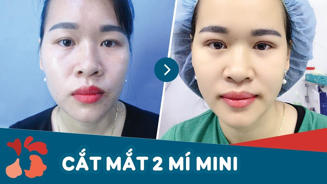 video cắt mí mắt mini