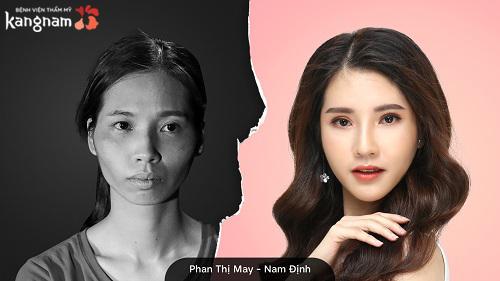 Phan Thị May Hành trình lột xác 2018 - 7