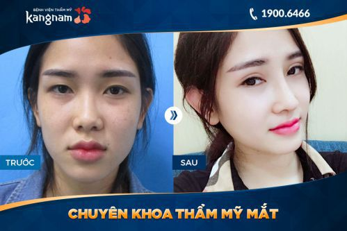 Nhấn mí Kangnam 1
