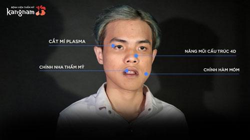 Cao Bùi Xuân Vinh thẩm mỹ