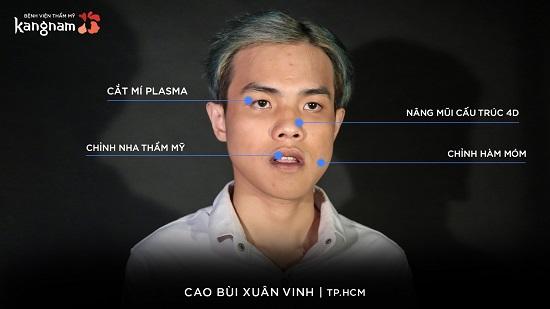 Cao Bui Xuan Vinh - hành trình lột xác 2