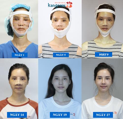 Phan Thị May Hành trình lột xác 2018 - 3