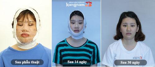 Quá trình hồi phục của Nguyễn Thị Hương Thảo sau phẫu thuật