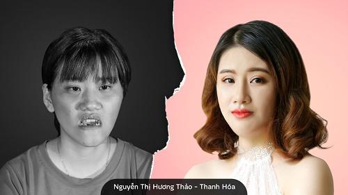 Không còn nhận ra Nguyễn Thị Hương Thảo rụt rè, tự ti về ngoại hình trước đây