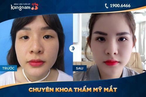 nhấn mí mắt Kangnam