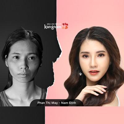 Nhan sắc 9X Nam Định sau lột xác xinh giống ngọc nữ điện ảnh Hàn