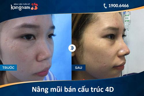 Hình ảnh nâng mũi bán cấu trúc 4D