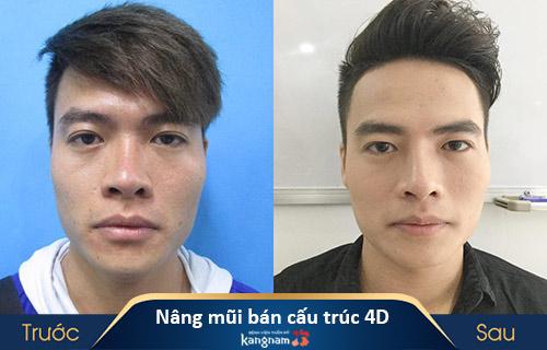 tìm hiểu nâng mũi bán cấu trúc 4d là gì?