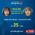 Nâng mũi bán cấu trúc 4D giá bao nhiêu tiền?
