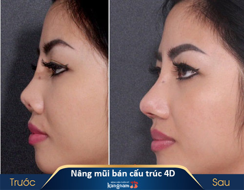 tìm hiểu nâng mũi bán cấu trúc 4d