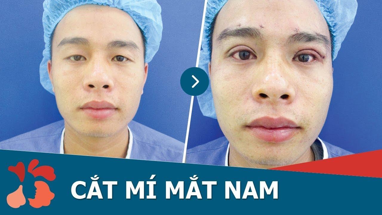 video chỉnh hình mắt