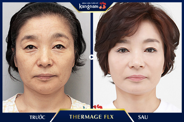 Kết quả sử dụng Thermage FLX