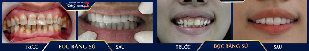kết quả chữa răng