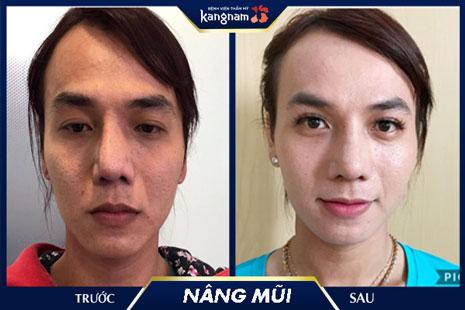 chỉnh hình mũi tại kangnam
