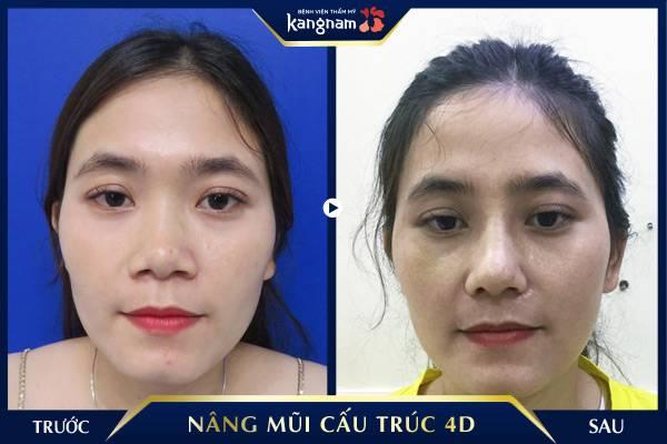 mũi thấp Nâng mũi cấu trúc 4D