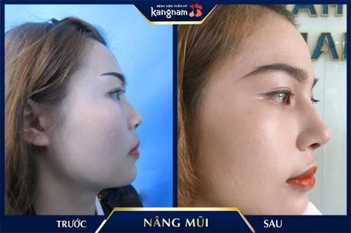 hình ảnh Nâng mũi cấu trúc 4D