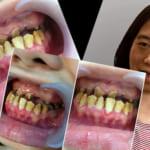 Giải cứu mọi tình trạng răng hàm mặt – Đến Kangnam