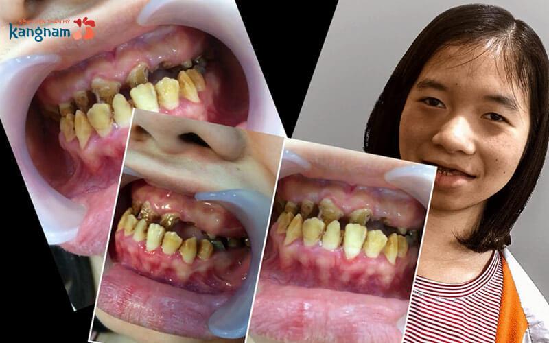 răng hàm mặt kangnam