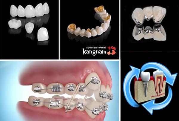 Bệnh viện răng hàm mặt Kangnam
