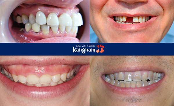 Bệnh viển răng hàm mặt
