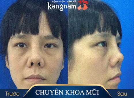 nâng mũi nanoform tại kangnam