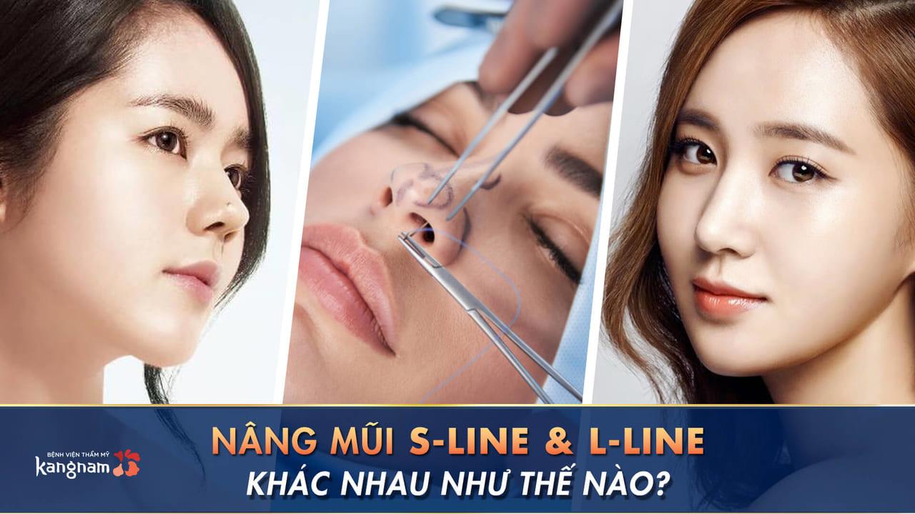 Nâng mũi S-line khác L-line như thế nào?