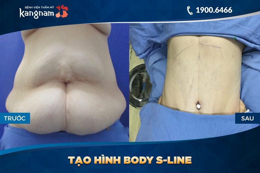 trước sau Tạo hình Body S-line
