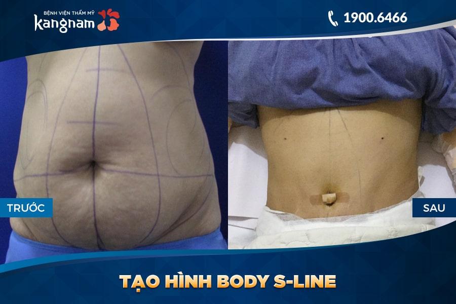 khách hàng Tạo hình Body S-line
