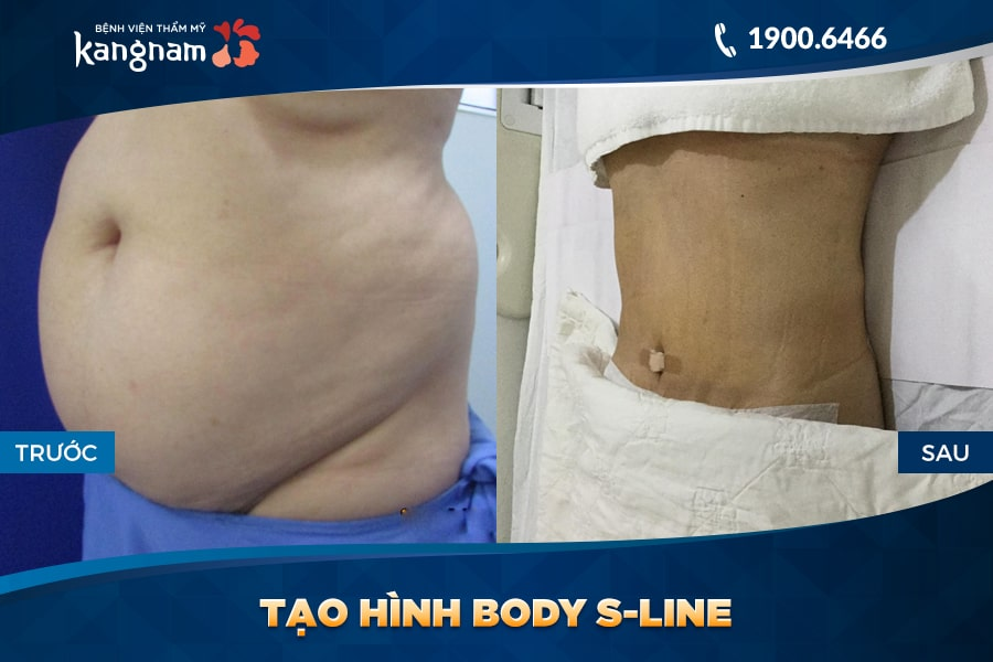 kết quả Tạo hình Body S-line
