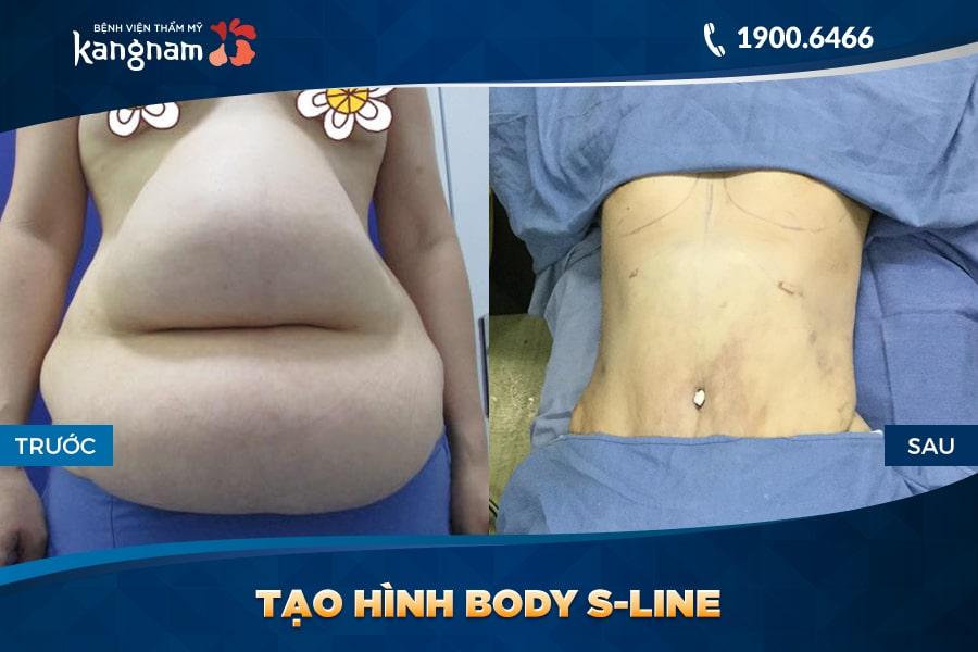 sau khi Tạo hình Body S-line