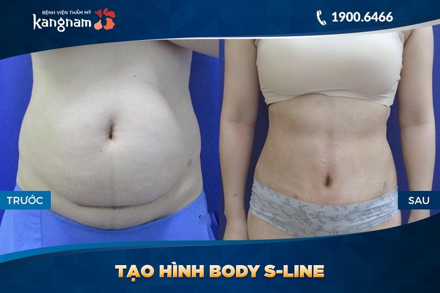 Tạo hình Body S-line