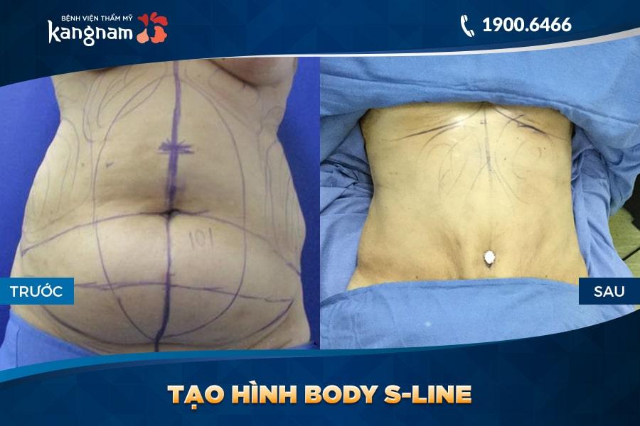 Tạo hình Body S-line bvtm kangnam