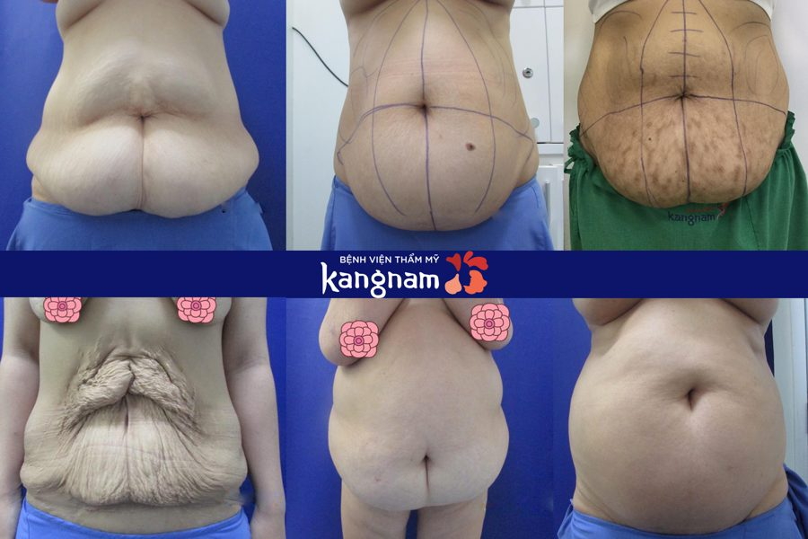Tạo hình Body S-line kangnam