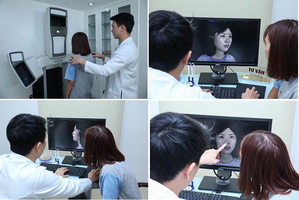 công nghệ nâng mũi kangnam