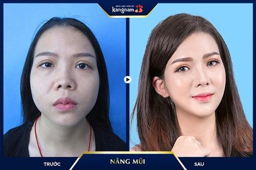công nghệ thẩm mỹ mũi